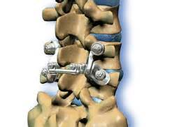 spinal facet joint